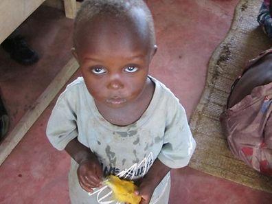 Wassermangel und Hungersnöte sollen nach dem Willen der UN besiegt werden.