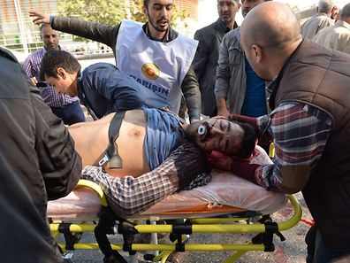 An injured man is wheeled away on a stretcher following an explosion at the main train station in Turkey's capital Ankara, on October 10, 2015. At least 30  people were killed and 126 were injured in the explosion which happened ahead of an anti-government peace rally organised by leftist groups later in the day, including the pro-Kurdish Peoples' Democratic Party (HDP).  AFP PHOTO / ADEM ALTAN