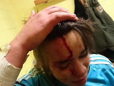 The Hosingen goalie was hit across the head with a pair of football shoes