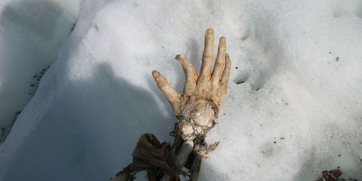 Grausiger Fund: Diese Hand könnte einem der Passgiere eines Air-India-Flugs gehören, der am Mont Blanc abstürzte - entweder 1950 oder 1966.