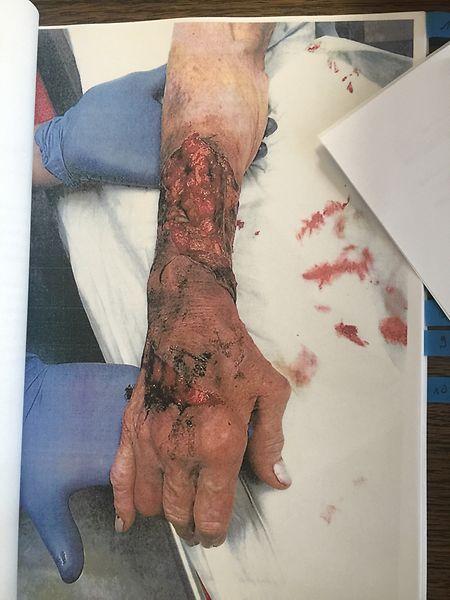 Das 85-jährige Frau wurde von den Tätern schwer an den Unterarmen verletzt.