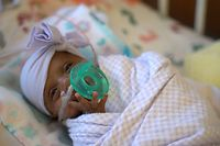 "In this picture received by AFP from Sharp Mary Birch Hospital for Women & Newborns on May 29, 2019, shows baby Saybie, the world's smallest surviving newborn, when she weighed 3 lbs in March 2019 in San Diego, California. - A baby girl who weighed 245 grams and measured 23 cm became the smallest baby in the world, a US hospital reported after being discharged five months after being in intensive care. (Photo by HO / Sharp HealthCare. / AFP) / RESTRICTED TO EDITORIAL USE - MANDATORY CREDIT ""AFP PHOTO / Sharp HealthCare/HO"" - NO MARKETING NO ADVERTISING CAMPAIGNS - DISTRIBUTED AS A SERVICE TO CLIENTS"