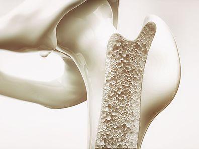"""Die Bezeichnung Osteoporose leitet sich von den altgriechischen Begriffen """"osteon"""" (Knochen) und """"poros"""" (Furt, Pore) ab. Die Krankheit wird auch als Knochenschwund bezeichnet."""