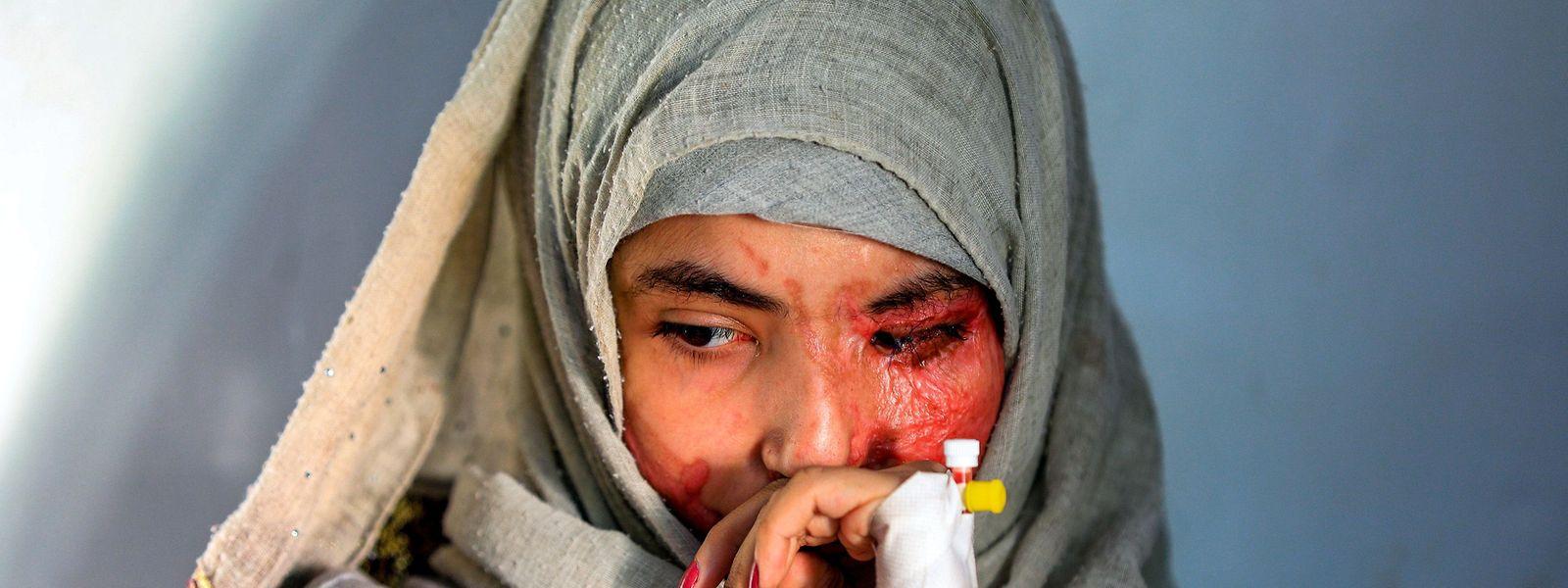 Die Zivilbevölkerung im Jemen muss während des Bürgerkrieges entsetzliches Leid ertragen.