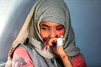 EDITORS NOTE: Graphic content / Al-Anoud Hussain Sheryan, a 19-year-old girl disfigured in an acid attack by her abusive husband, sits at a hospital where she is undergoing treatment in Yemen's capital Sanaa on January 28, 2021. - Married at the age of 12, rejected at 16, and then disfigured in an acid attack, Sheryan's fate is a shocking illustration of abuse in a society beset by war and poverty. Now aged 19, the young Yemeni woman agreed to relate her ordeal at the hands of her abusive husband -- rare testimony in a country where domestic violence is largely hidden. (Photo by Mohammed HUWAIS / AFP)