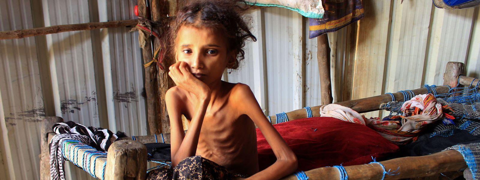 24 Millionen Jemeniten sind auf Nahrungshilfe aus dem Ausland angewiesen. Besonders schlimm trifft es die Kinder, die unter akuter Unterernährung leiden.