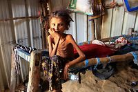 TOPSHOT - Yemeni 10-year-old girl Ahmadia Abdo, who weighs ten kilograms due to acute malnutrition, sits on her bed at a camp for the internally displaced in the northern Hajjah Governorate, on January 23, 2021. (Photo by ESSA AHMED / AFP)