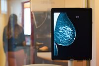 ARCHIV - 25.10.2017, Sachsen-Anhalt, Magdeburg: Die Brust einer Frau ist auf einer Röntgenaufnahme zu sehen. (zu dpa «Hormontherapien erhöhen das Brustkrebsrisiko langfristig») Foto: Klaus-Dietmar Gabbert/zb/dpa +++ dpa-Bildfunk +++