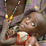 Fome aumentou na África Subsaariana e atingiu 237 milhões em 2017