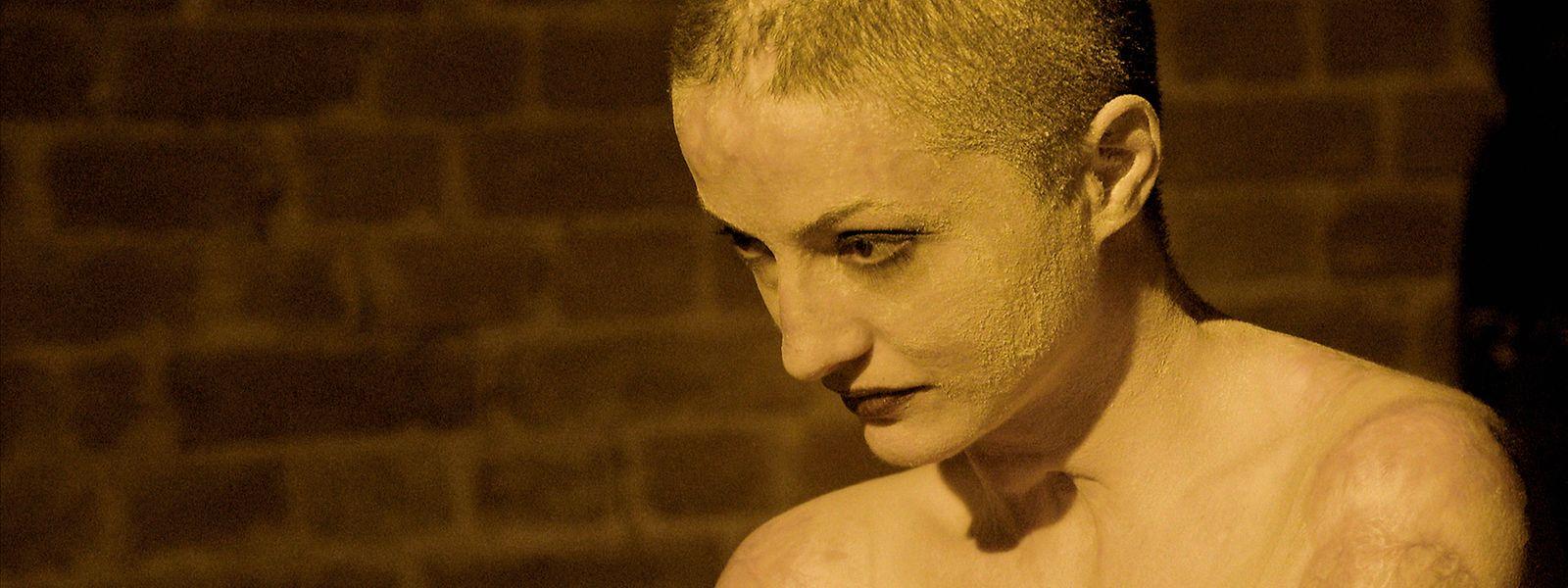 Tedy est l'une des victimes de l'incendie dévastateur du night-club Colectiv de Bucarest. Elle en porte les stigmates sur son corps.