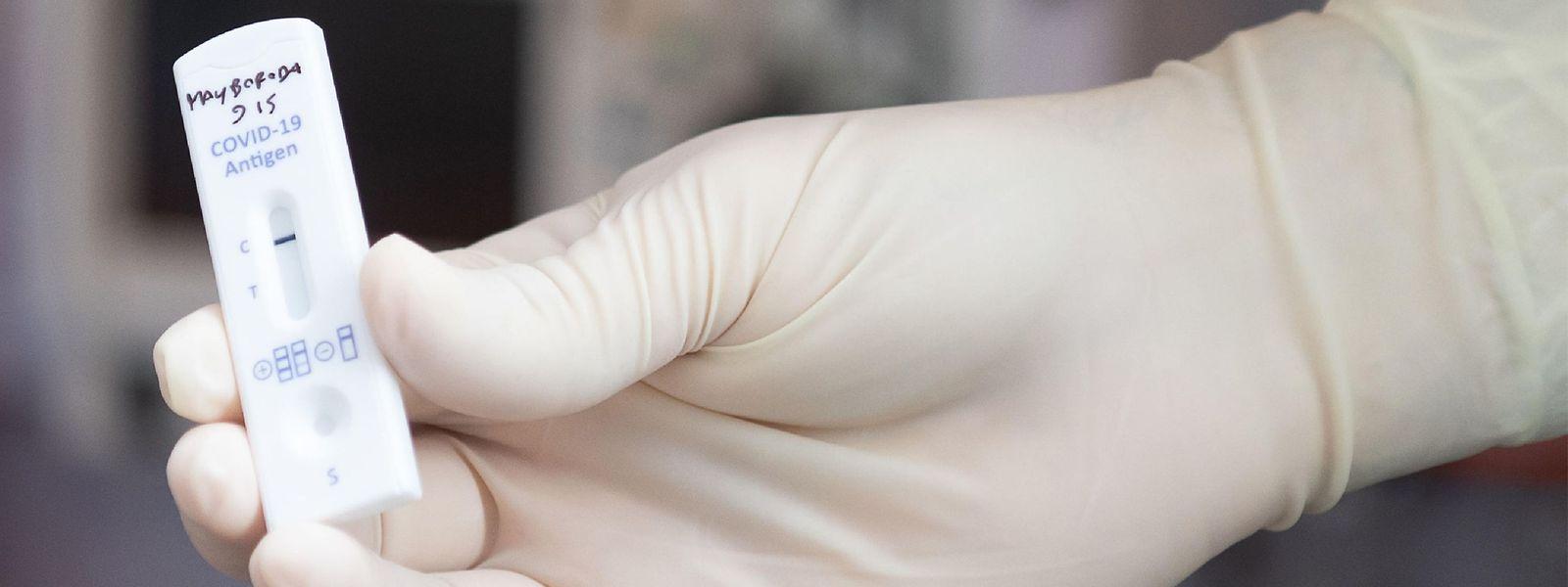 Cinq kits différents sont actuellement étudiés par les équipes du Laboratoire national de santé luxembourgeois.