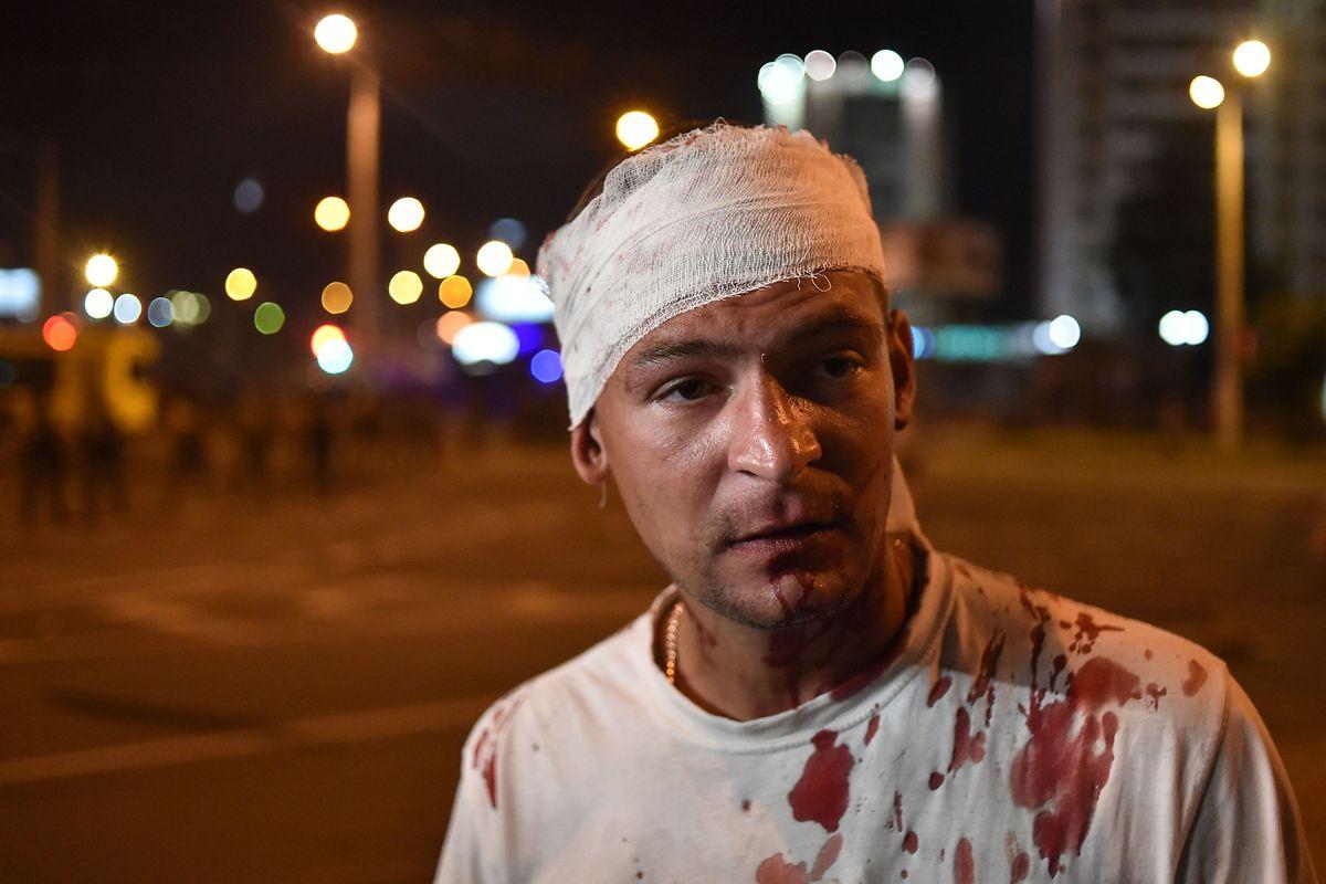 Ein Mann, der bei den Demonstrationen in Minsk verletzt wurde.