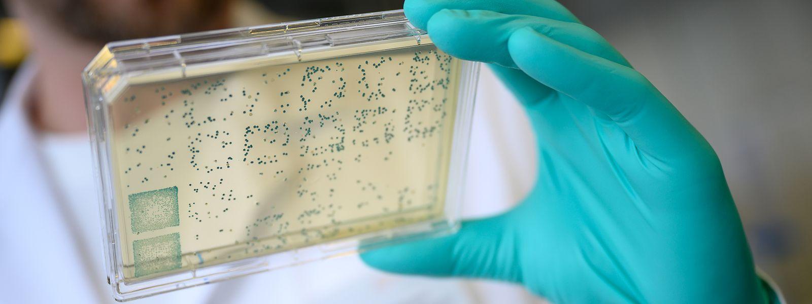 Russland will nach eigenen Angaben im September mit der Massenproduktion eines Impfstoffs gegen das neuartige Corona-Virus starten.