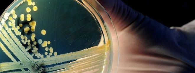Schale mit Kolonien des aggressiven Darmkeims EHEC: Mediziner warnen davor, dass es keine Gewähr dafür gibt, dass neue Infektionskrankheiten glimpflich ausgehen.