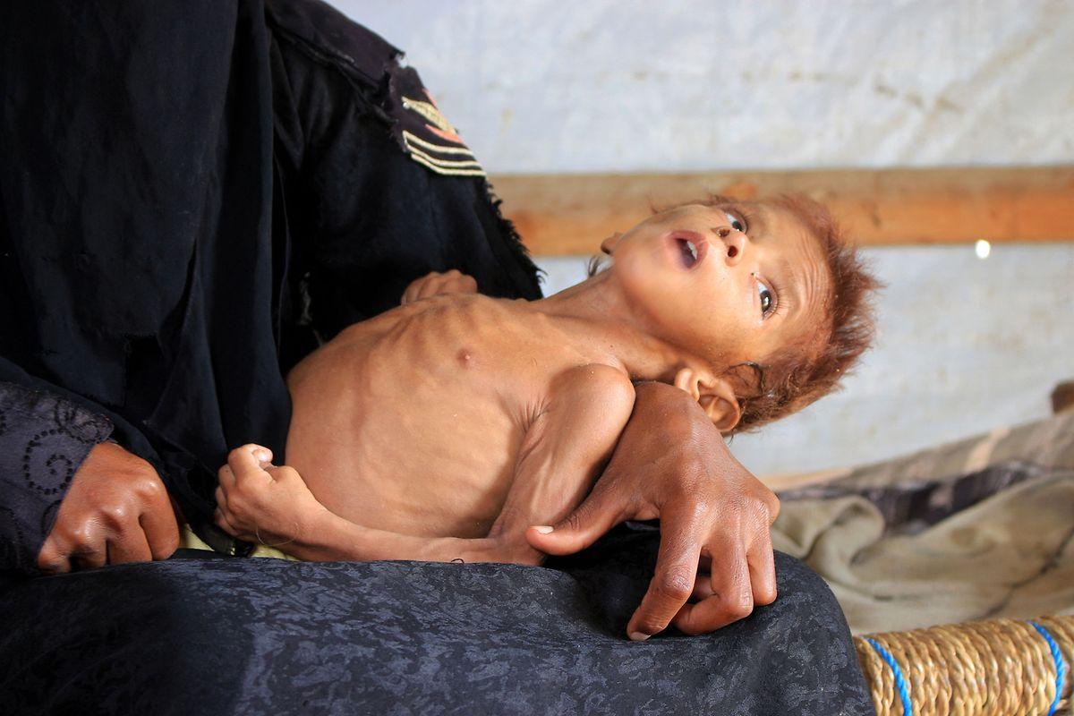 24 der 30 Millionen Jemeniten sind auf internationale Hilfe angewiesen. Vor allem Kinder leiden unter dem beständigen Nahrungsmangel.