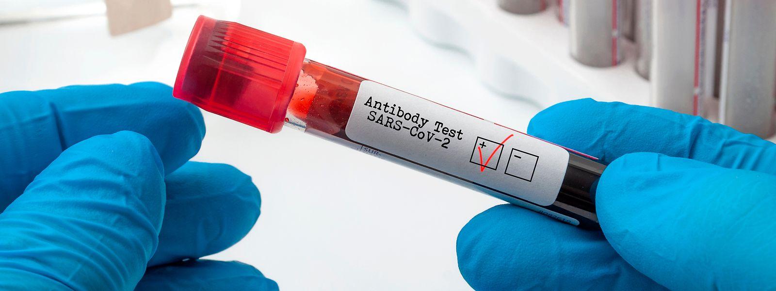 Für die Covid-19-Antikörpertests wird Blut benötigt. Je größer die Menge, desto genauer kann untersucht werden, ob eine Person tatsächlich gegen das Virus immun ist.