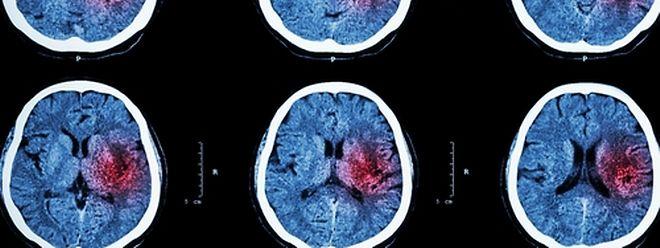 L'accident vasculaire cérébral, autrement appelé infarctus cérébral, mis en évidence par imagerie médicale.