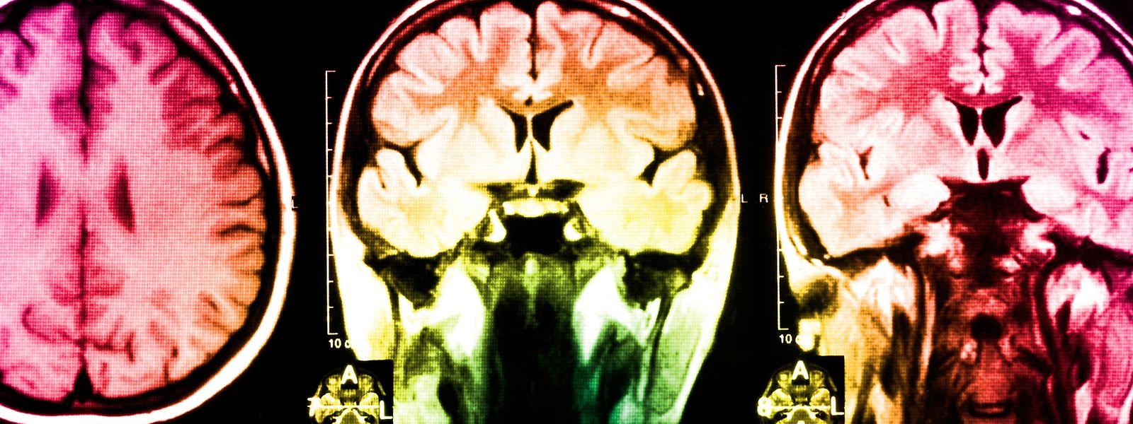 Von der Bildgebung zur softwarebasierten Diagnostik: Das Erkennen von Mustern, die auf eine Krankheit hinweisen, zählt zu den Stärken der Künstlichen Intelligenz.
