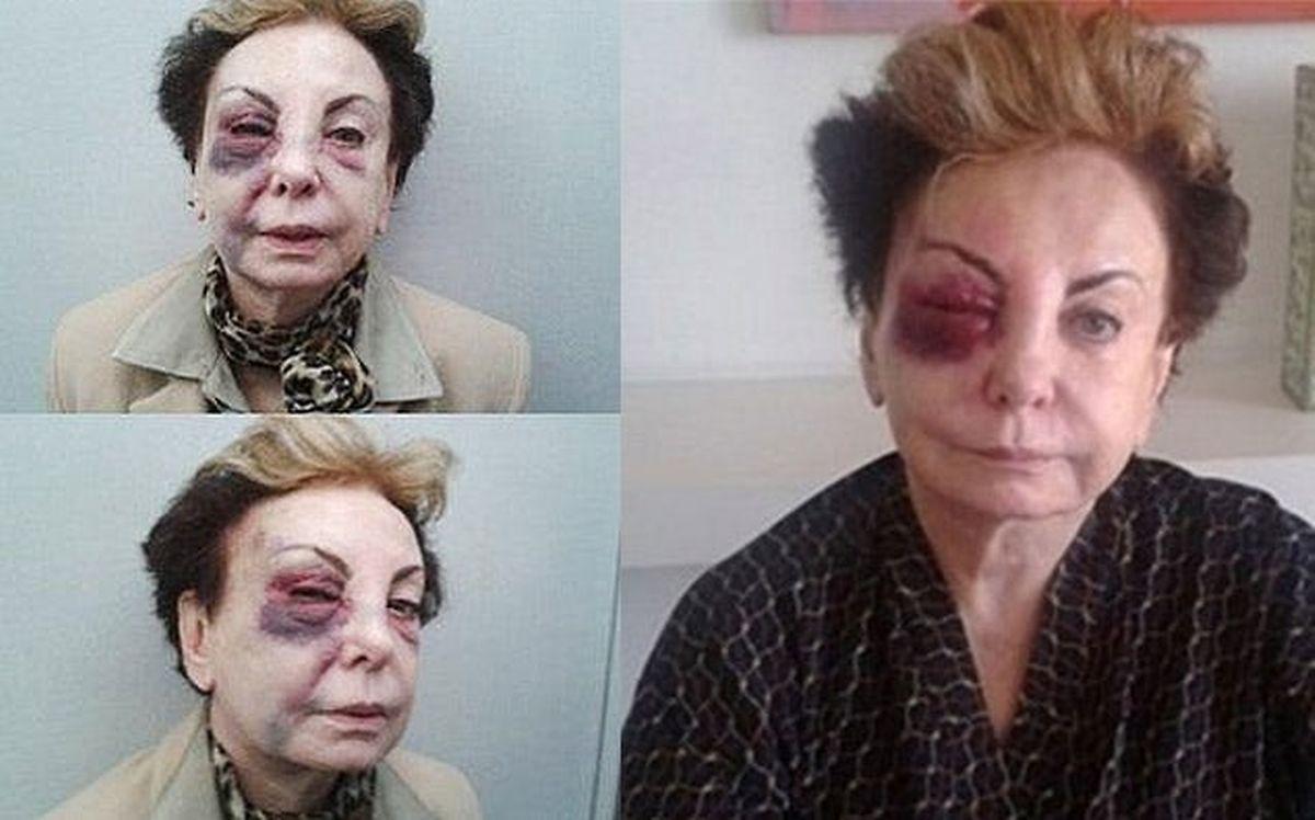 A imagem da já falecida atriz brasileira Beatriz Sagal circulou nas redes sociais, onde se alegava que Beatriz teria sido espancada na rua porque era apoiante de Bolsonaro. Quando era viva a atriz sofreu um acidente que a deixou neste estado.