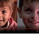 Jouma é o rosto de milhares de crianças vítimas das guerras