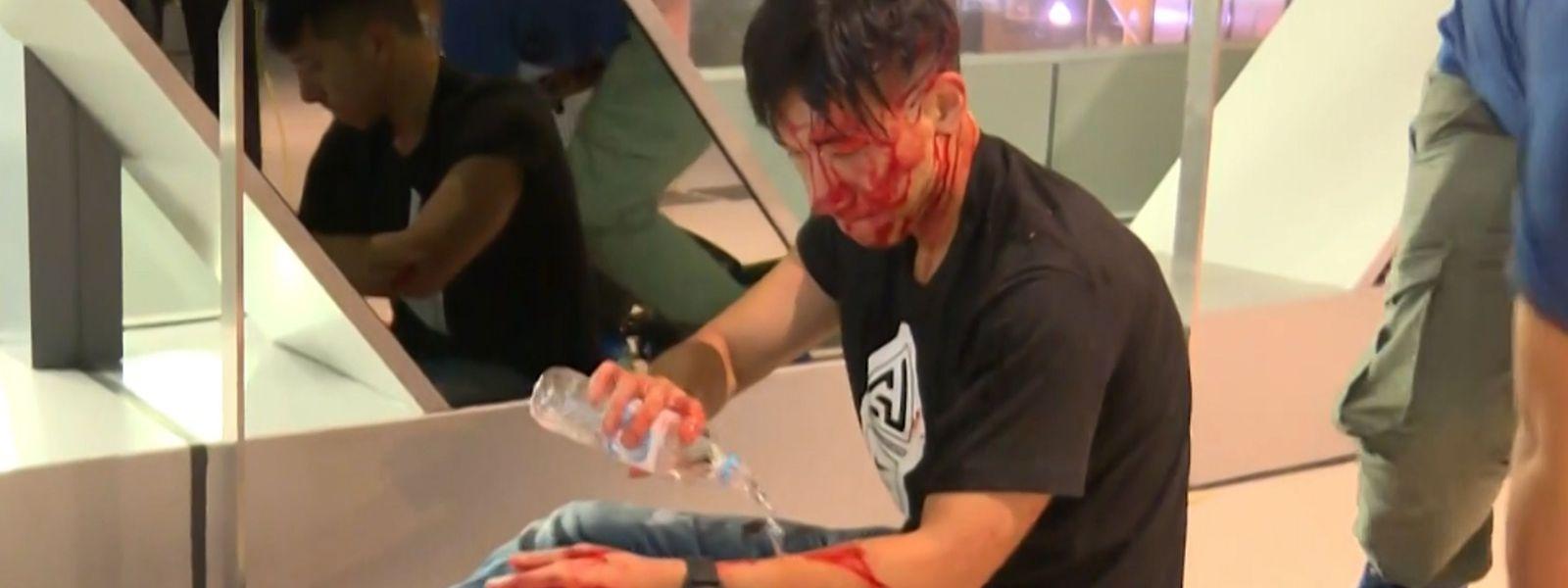 Journalist Ryan Lau Chun Kong blutet nach Mob-Übergriffen.