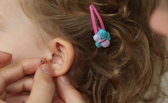 Dürfen Eltern ihren kleinen Kindern Ohrlöcher stechen lassen?