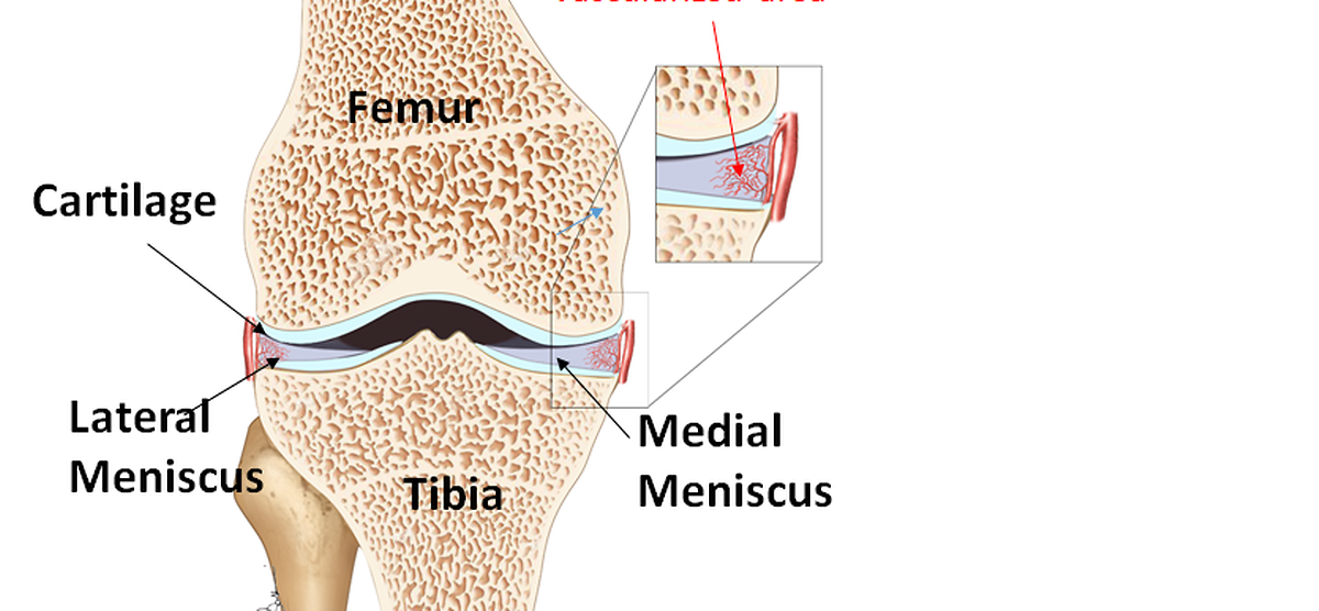 Zwischen Oberschenkelknochen (Femur) und Schienbein (Tibia) liegen die beiden Menisken: Der Außenmeniskus (Lateral Meniscus) und der Innenmeniskus (Medial Meniscus).  (Cartilage = Knorpel)