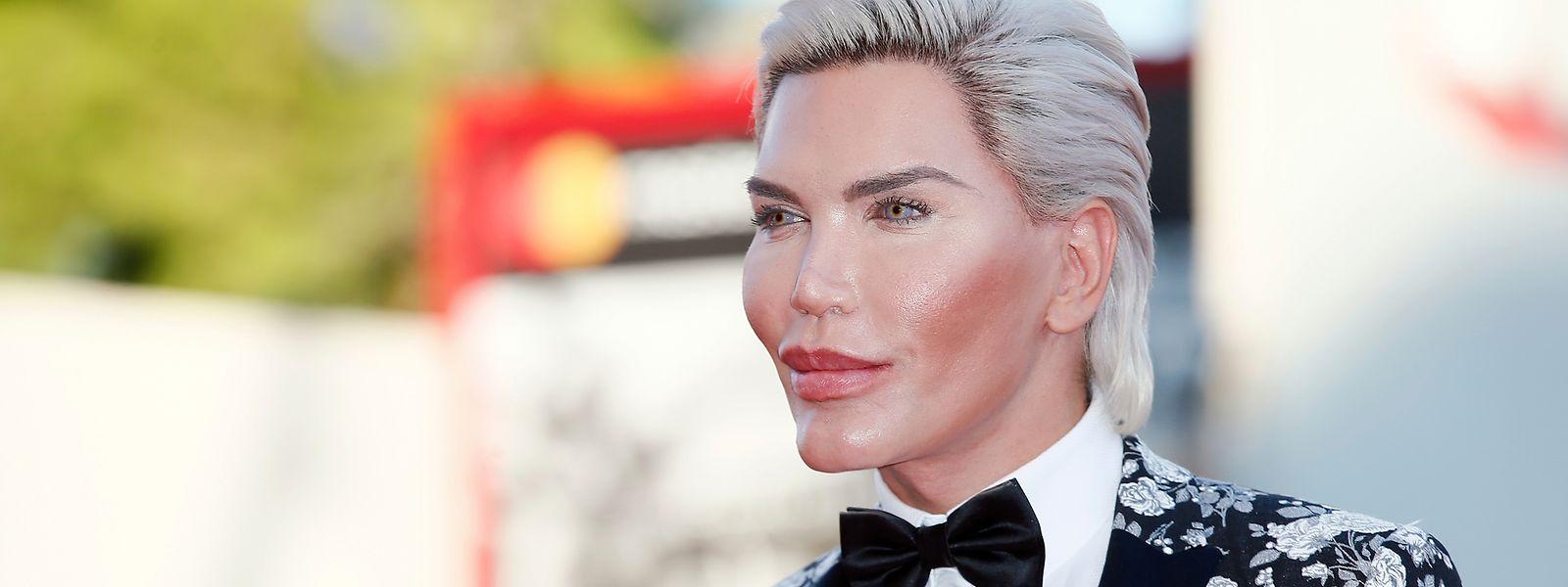 Rodrigo Alves, Brésilien de 34 ans, a subi plus de 100 opérations esthétiques pour ressembler à la poupée Ken.
