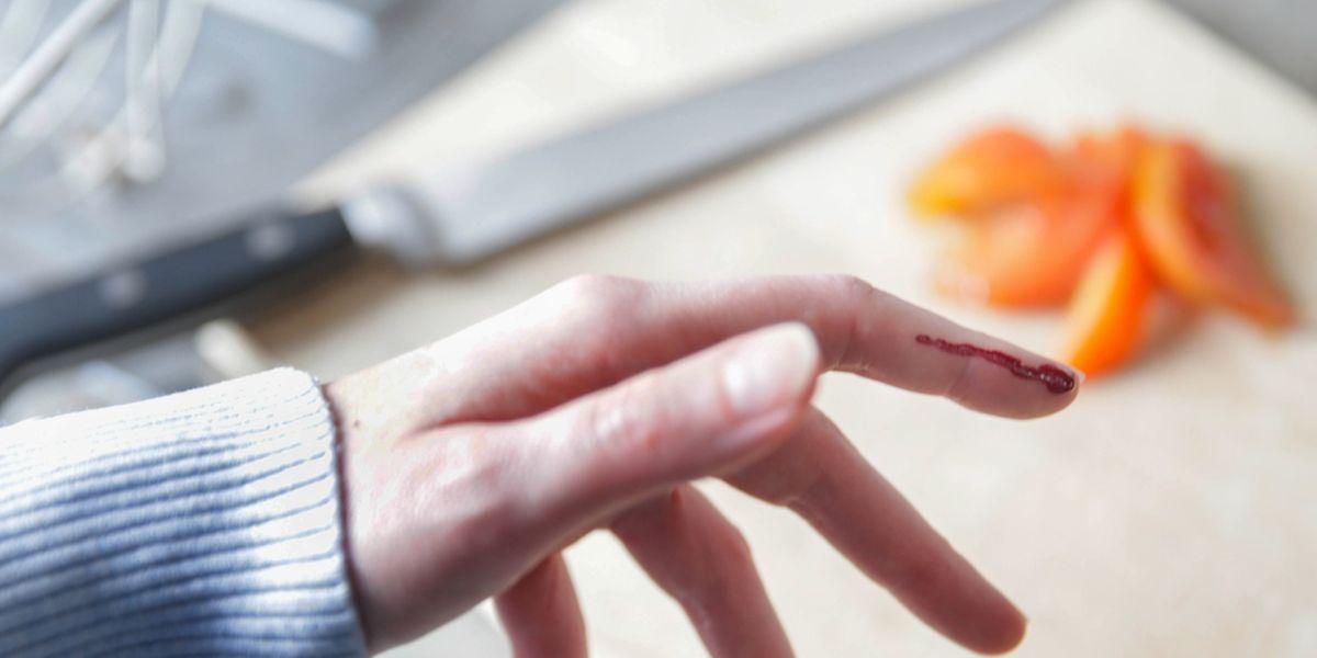 Schnitt- und Stichverletzungen sind die zweithäufigste Art von Haushalts- und Freizeitunfällen.