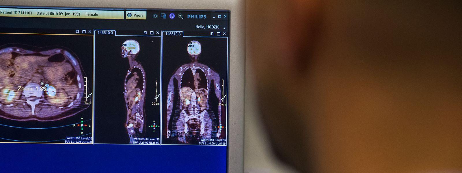 Mit dem CT-Scanner lassen sich sogenannte Milchglastrübungen auf der Lunge erkennen, die typisch für Covid-19 sind.
