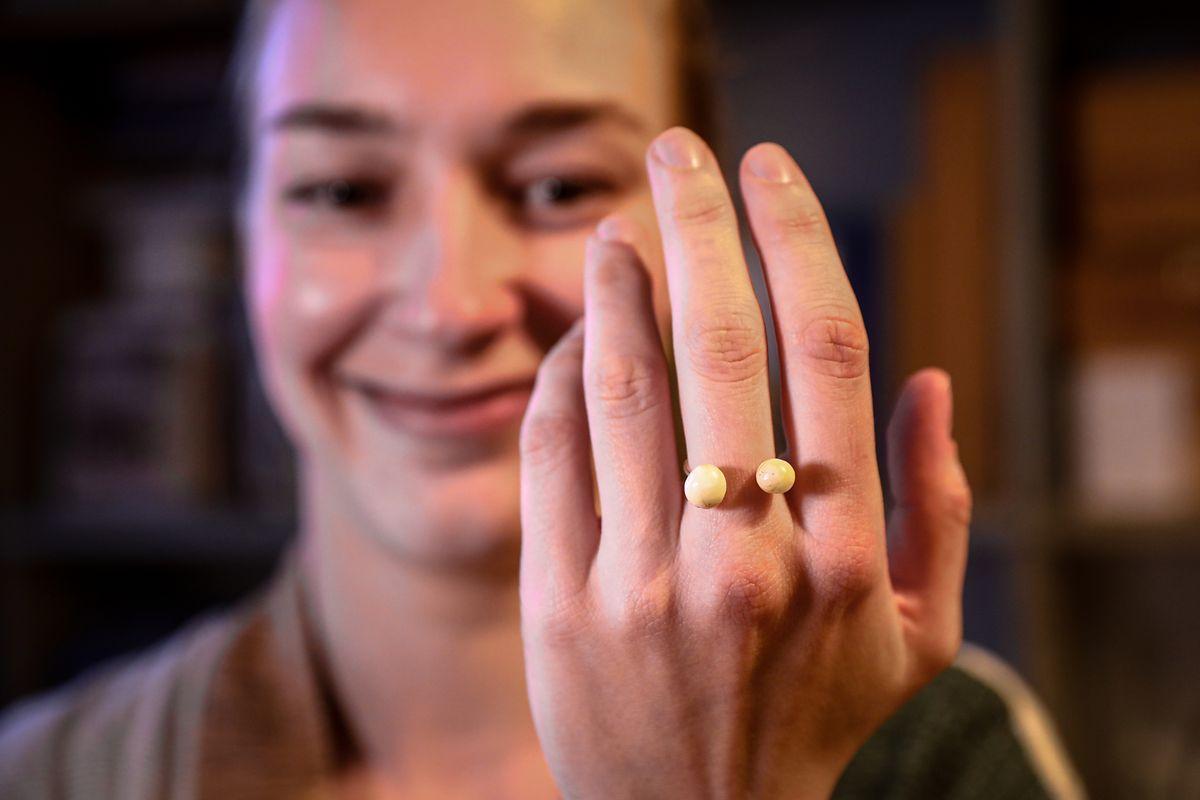 Lucie selbst hat einen Ring aus ihren Weisheitszähnen gemacht.
