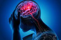 Schlaganfall, Gehirnschlag, Hirnschlag, Apoplexie
