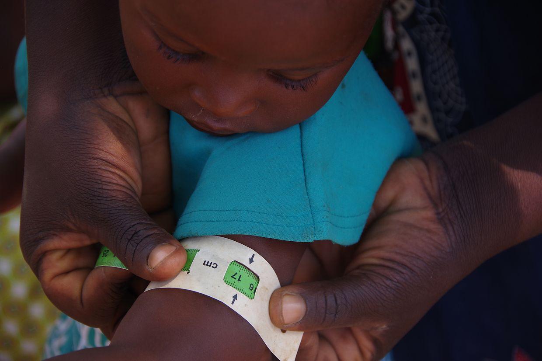 Mit einem speziellen Bändchen können Pfleger feststellen, ob ein Kind unterernährt ist.