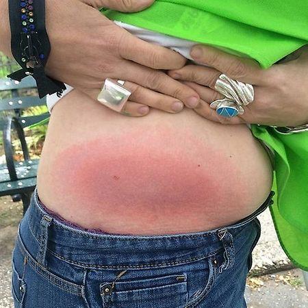 O vermelhão à volta da mordida da carraça é um sinal da doença