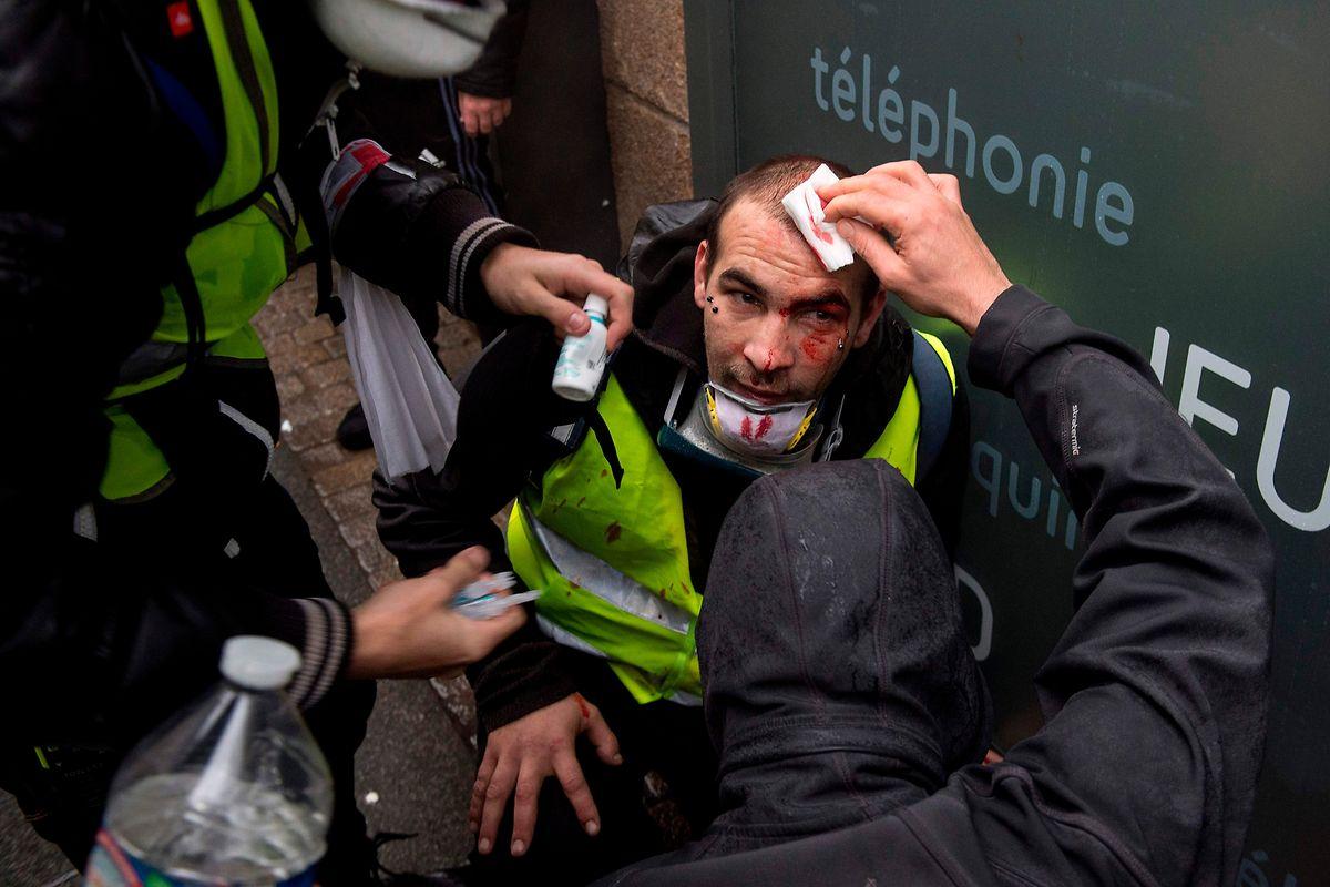 Dieser Mann wurde in Nantes am Kopf verletzt.