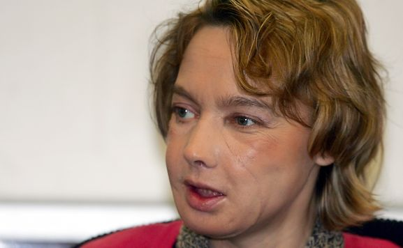 Frenchwoman who received world's first face transplant dies