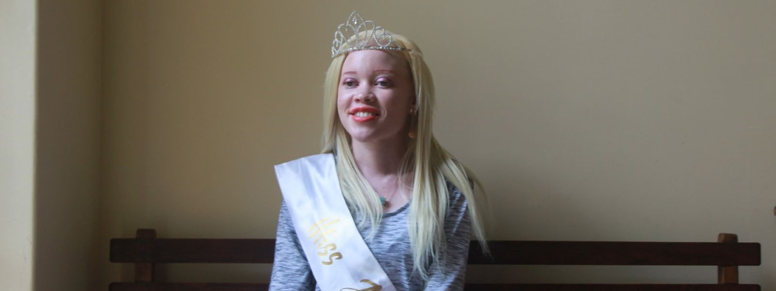 Sithembiso Mutukura ist die erste Miss Albinismus des Landes.