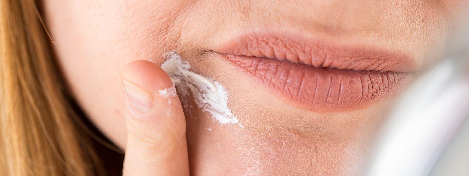 Bloß nicht eincremen:Am besten heilt eine Periorale Dermatitis, wenn Betroffene ihrer Haut eine Art Nulldiät verordnen.